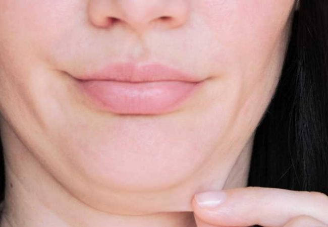 How To Reduce Double Chin?